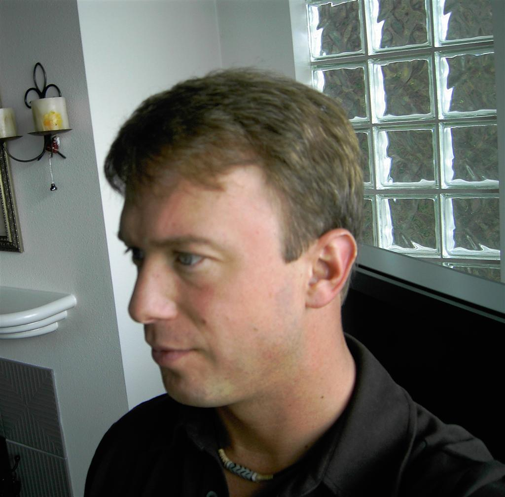 Haircut After Hair Transplant Hairstly