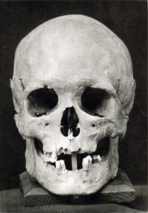 Bach's skull