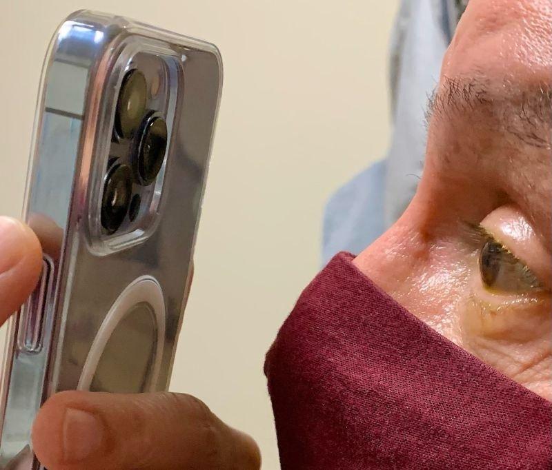 Il dottor Korn utilizza un iPhone 13 Pro per scattare immagini degli occhi di un paziente.  Credito: Dr. Tommy Korn