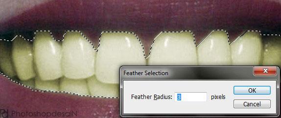 memutihkan-gigi2