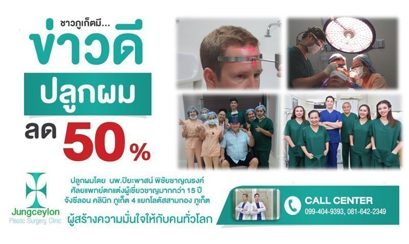 50% off for Hair Transplant