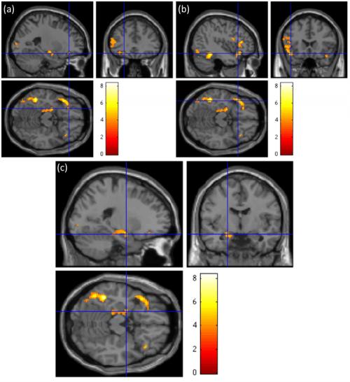 https://i2.wp.com/phys.org/newman/gfx/news/2014/neuralsweett.jpg