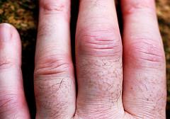early rheumatoid arthritis in fingers