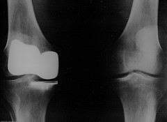 Total Knee Replacement - courtesy mikebaird