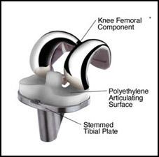Total Knee Replacement TKI Hardware