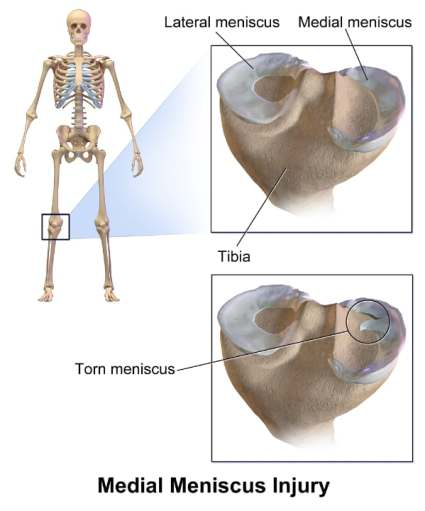 Medial and Lateral Meniscus of the Knee