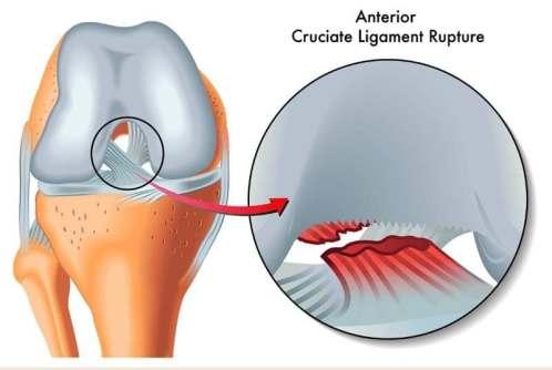 Ruptured Anterior Cruciate Ligament (ACL)