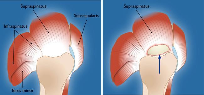 Full-Thickness Rotator Cuff Tear