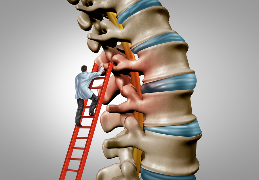 Physician Partners of America laser spine procedures allow a doctor to get to the root of spine pain