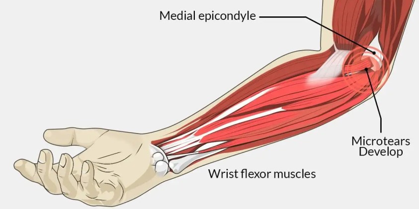 Golfer's Elbow - What is it? What causes it? How do we ...