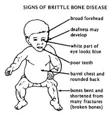 brittle bone