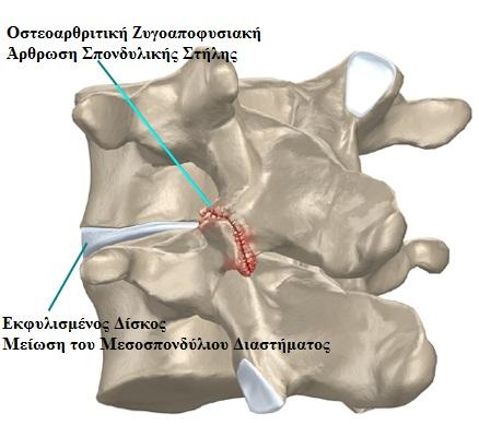 συνδρομο-ζυγοαποφυσιακων-αρθρωσεων-4