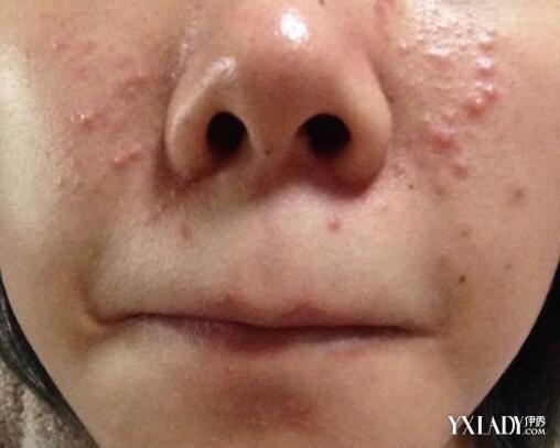 男生鼻子附近長痘痘是什麼原因 做到這10點和痘痘說拜拜 - 色彩地帶