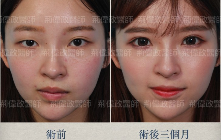 眼整形、雙眼皮手術失敗、眼整形權威、眼整形推薦、眼睛整大.jpeg