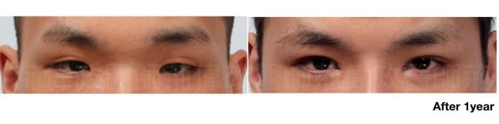 荊醫師、眼瞼肌無力訓練、眼瞼肌無力價錢、眼瞼肌無力ptt、提眼肌運動.jpg