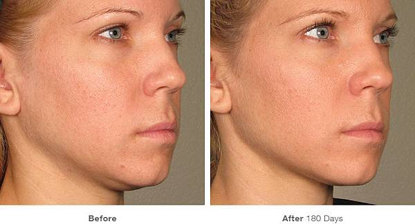 before_after_ultherapy_results_full-face23.jpg