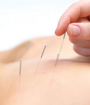 針灸治療方法的誤區 關於得氣的認識誤區 - 天天健康