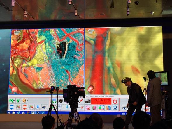 HTC VIVE 開發者峰會:虛擬實境在腦神經外科中的應用(Moty Avisar) IMG_0555