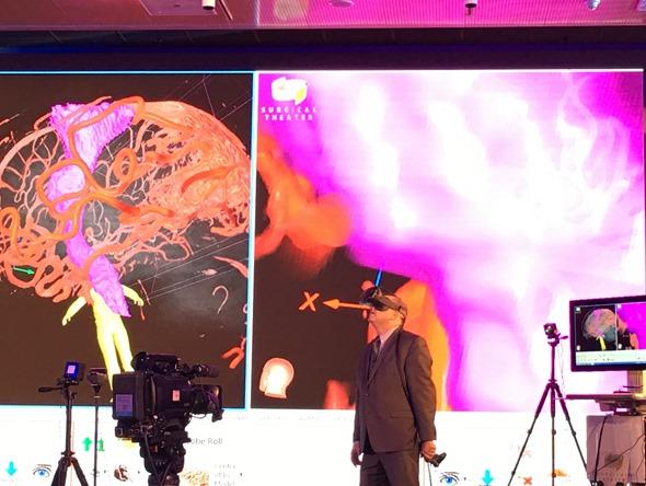 HTC VIVE 開發者峰會:虛擬實境在腦神經外科中的應用(Moty Avisar) IMG_0558