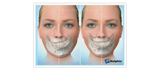 下頜骨和下顎骨有區別嗎? - 知乎