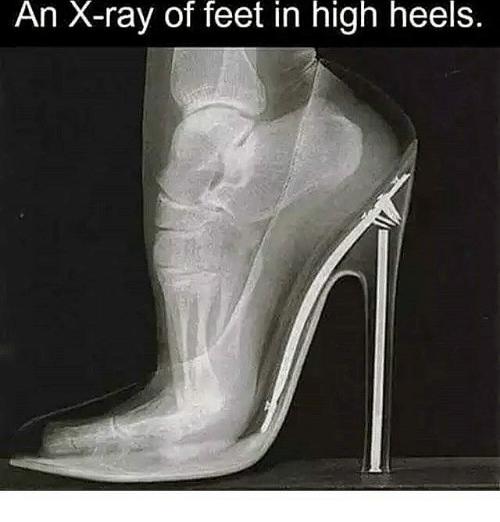 Heels What High Do Ray X
