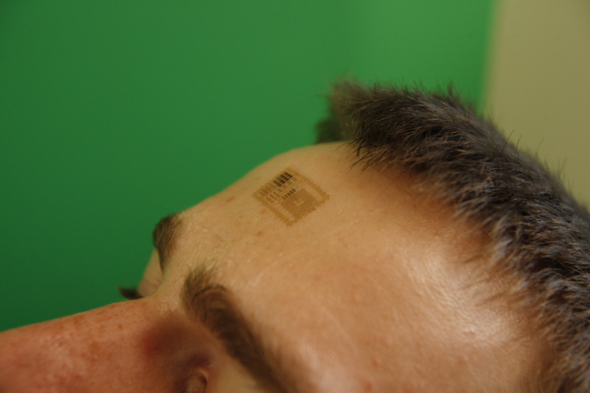 Beautiful Yellow And Black Color Ink Micro Chip Tattoo On Forehead For Boys