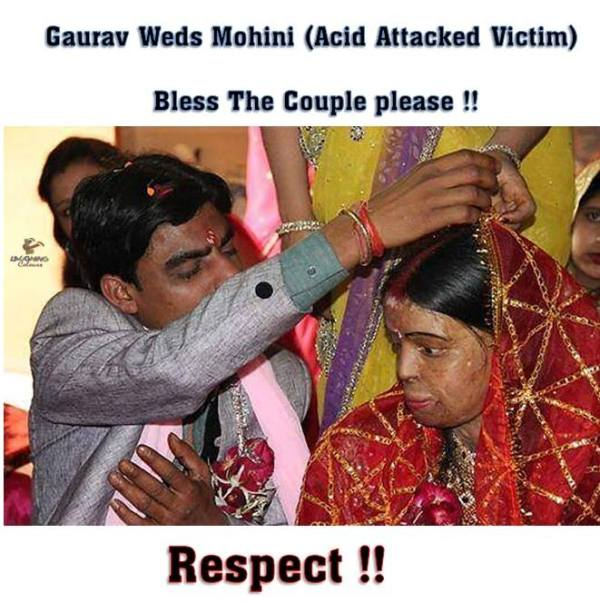 Please respect and bless this couple - acid attack victim