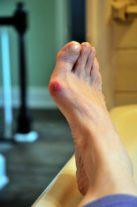 Hallux Valgus : Astuces pour soulager la douleur