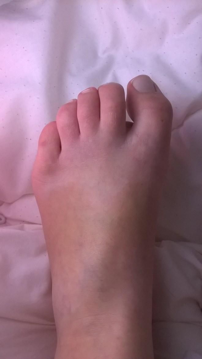 quintus varus un pied