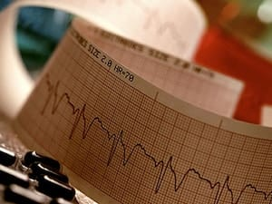 Don't Overlook Heart Care After Cancer Diagnosis