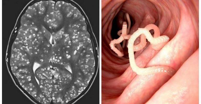 Muere en India un joven por una plaga de gusanos en el cerebro