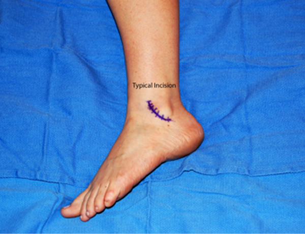 Torn Ankle Tendon Treatment