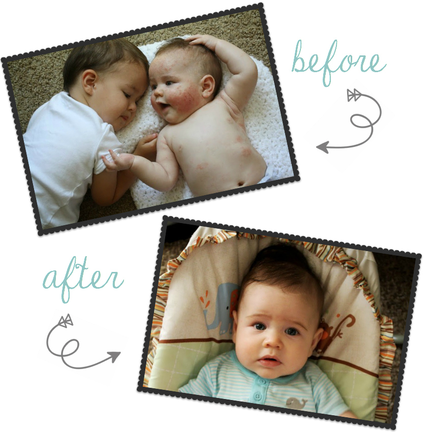 How I keep my child's eczema at bay