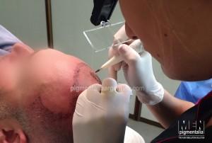 que-es-la-tricopigmentacion