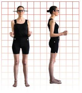 Análisis postural 2
