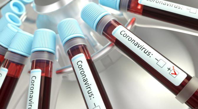 Cuál es la diferencia entre pruebas Covid: PCR y Antígenos