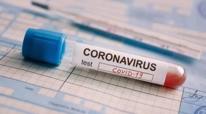 Cofepris autoriza 7 pruebas serológicas para medición de anticuerpos ante Covid-19