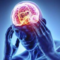 ¿Cuáles son los factores elementales para prevenir un accidente cerebrovascular?