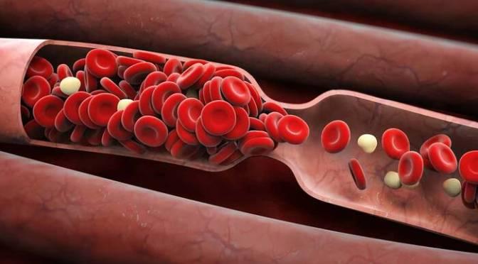 En México, hay más de 6 mil personas con desórdenes de coagulación de la sangre