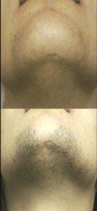 Hair & Chin