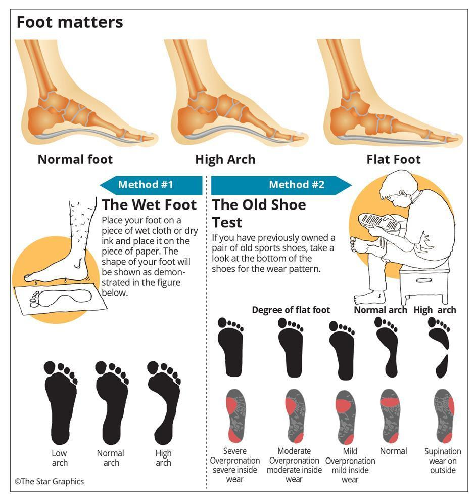find your feet type