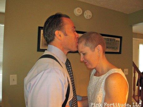 hubby kissing bald head on wedding day