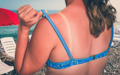 7 All-Natural Remedies for Sunburn Relief