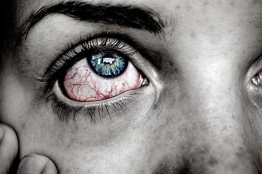 6 Penyebab Mata Gatal dan 3 Cara Mengatasinya