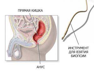 Dr weil anti-inflamator dieta pentru endometrioza