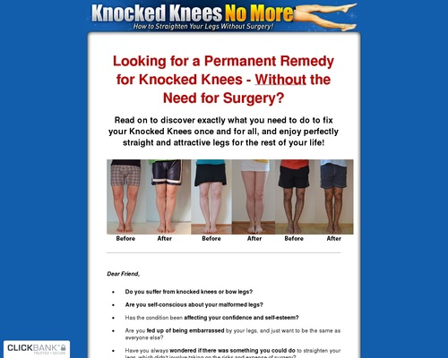 Knocked Knees No More – Hot For Year 2018!