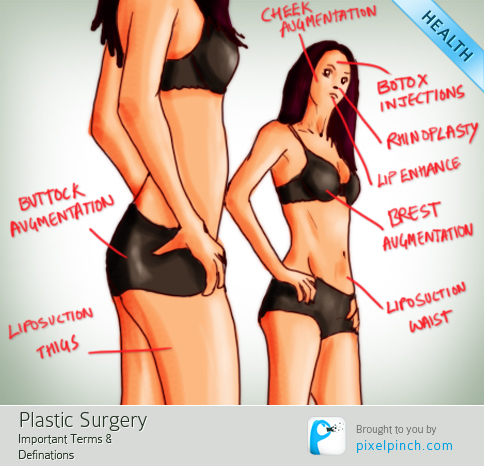 Plastic Surgery Terms and Meanings