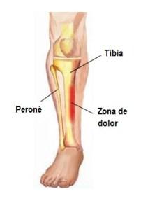 lesion en corredores de periostitis tibial
