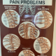 Thoracic Spine Pain Problems & Cervical Spine Diagnosis– Framed Posters