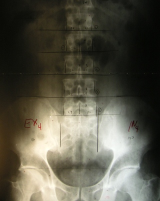 Marked Pelvic AP X-Ray